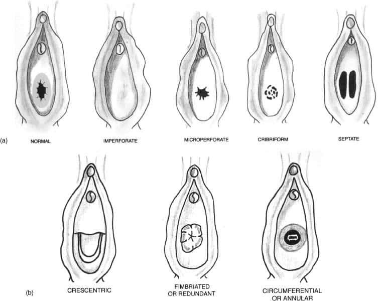 Kızlık zarı anatomisi