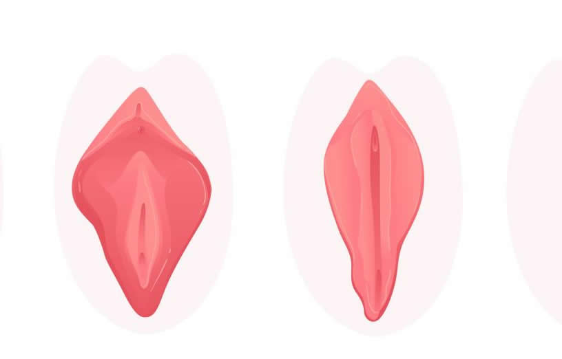 Labioplasti ameliyatı