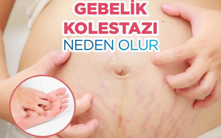 Gebelik kolestazı