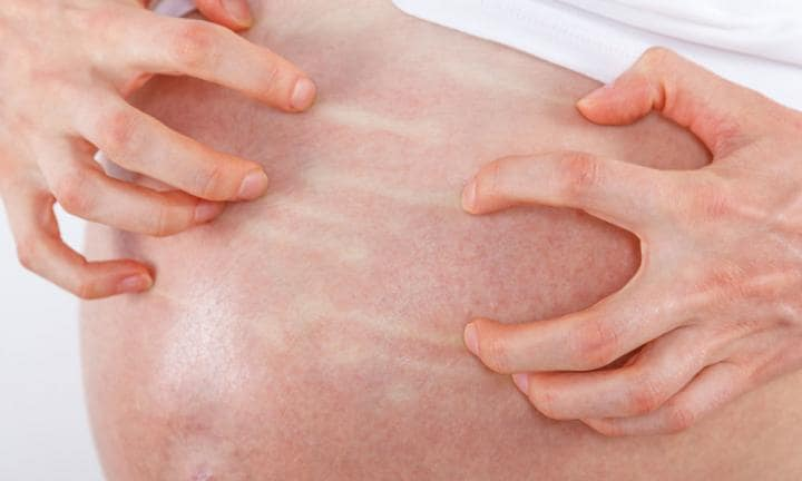 Gebelik kolestazı nedenleri
